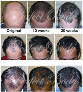 Long Island Laser Hair Restoration Perfect Body Laser